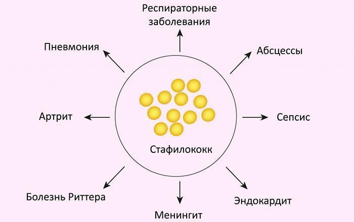 Золотистый стафилококк, причины, симптомы на коже, фото и лечение