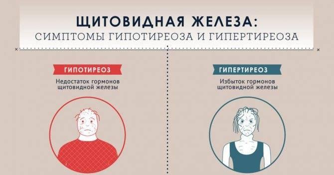 заболевания щитовидной железы психосоматика
