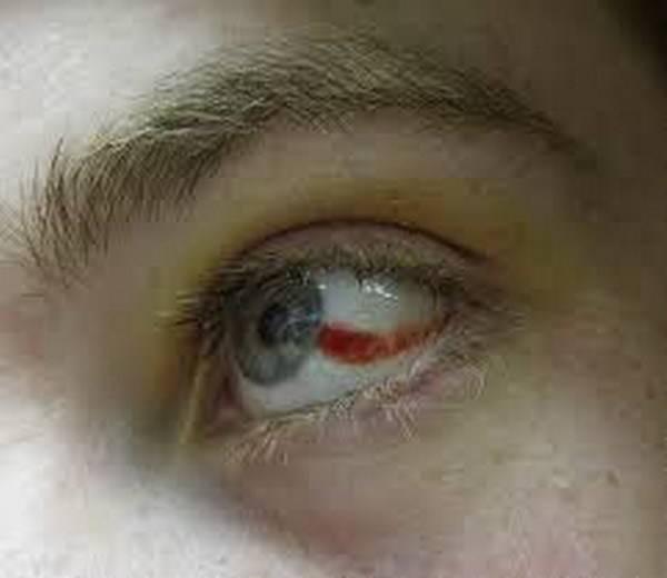 Что делать, если в глазу лопнул сосуд