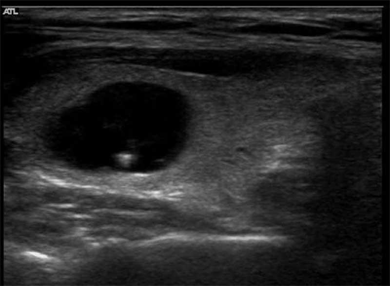 коллоидный узел щитовидной железы что это такое