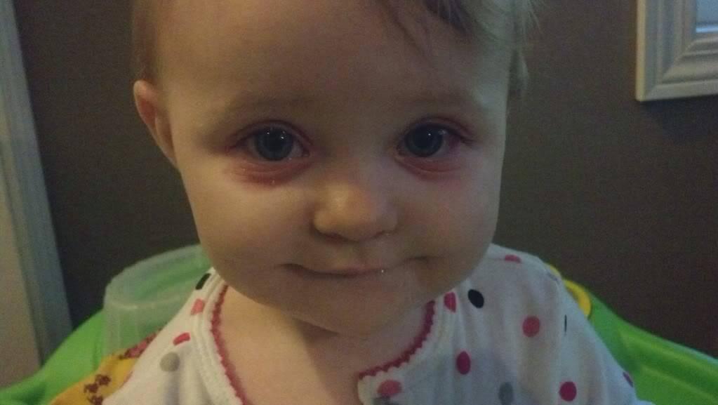 у ребенка утром отекшие глаза