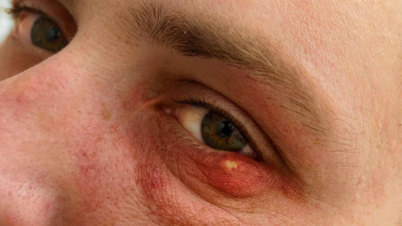 как лечить чирей на глазу