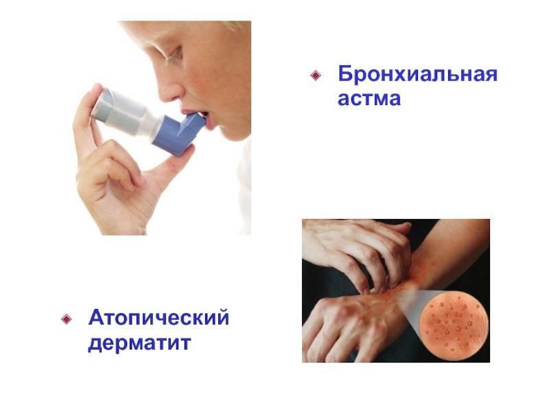 атопический дерматит бронхиальная астма