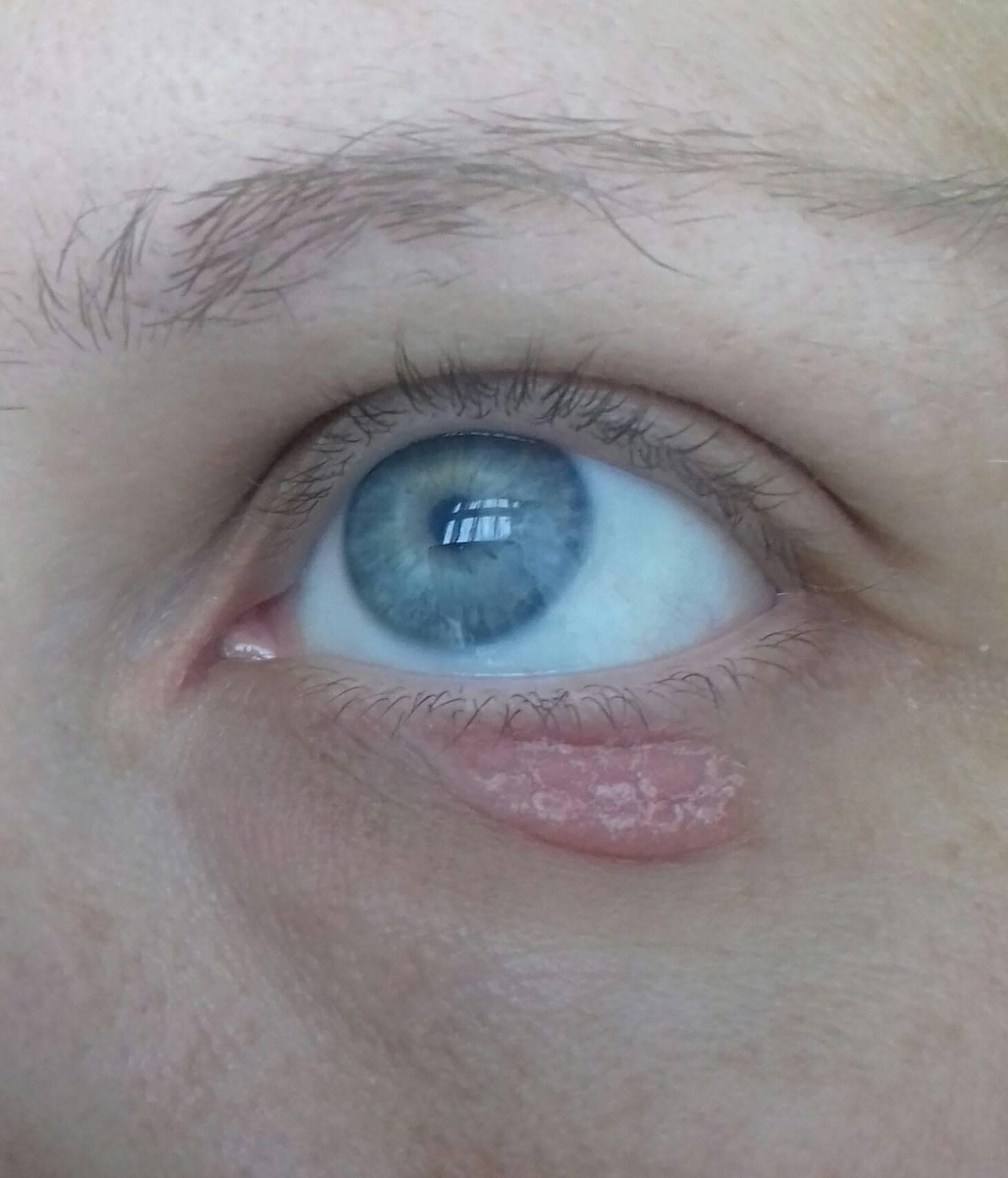 Красно-синие точки вокруг глаз...???