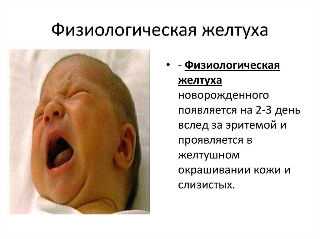Патологическая желтуха у новорожденных: причины, симптомы, лечение и последствия