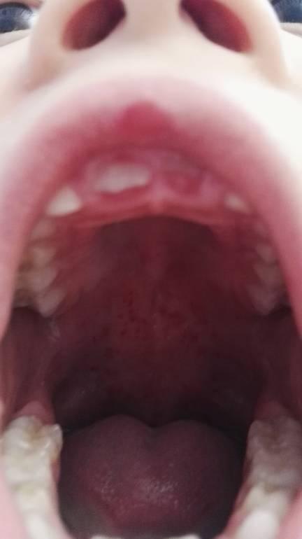 сыпь в горле у ребенка