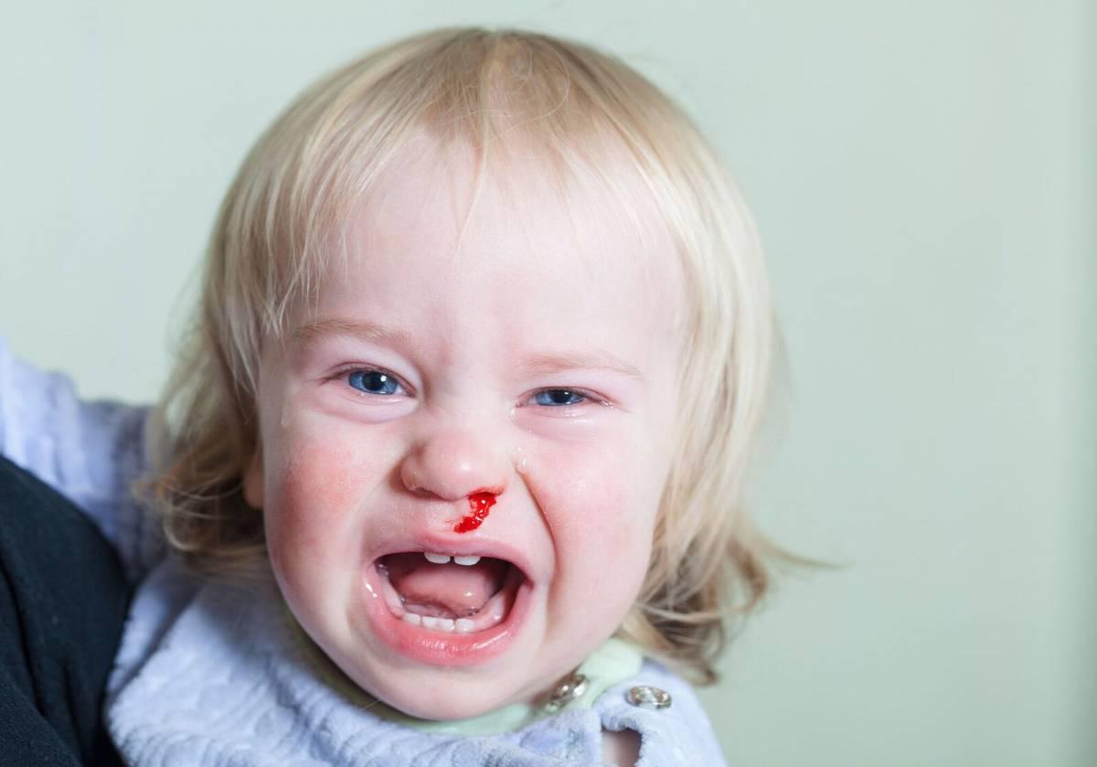 Ребенок ударился головой: что делать, последствия