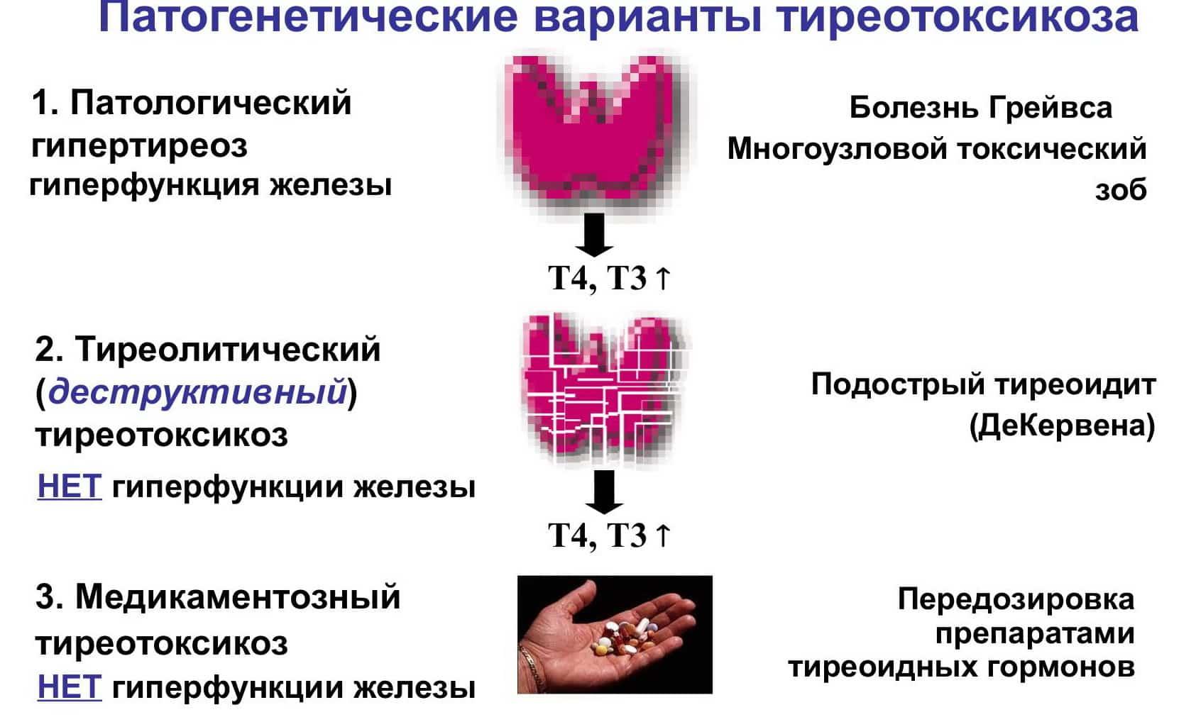 щитовидная железа тиреотоксикоз