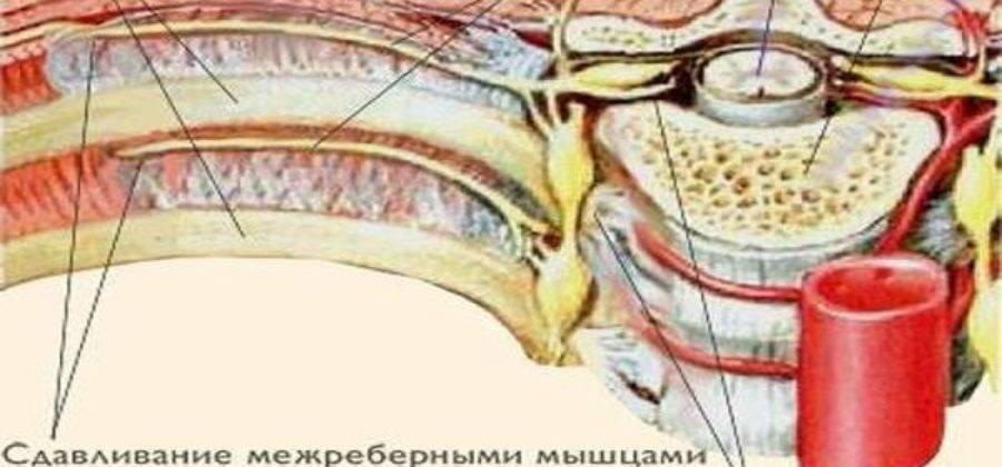 невралгия грудной клетки симптомы
