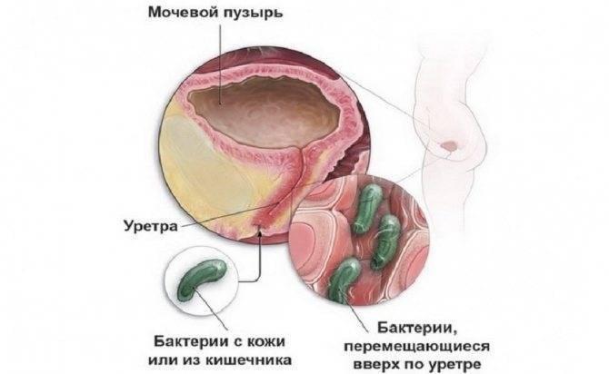 Лечение уретрита и цистита у женщин | советы доктора
