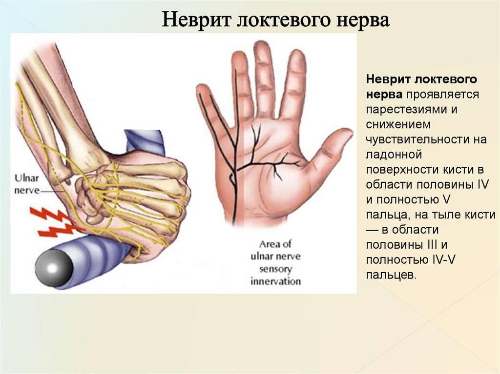 лечение неврита лучевого нерва
