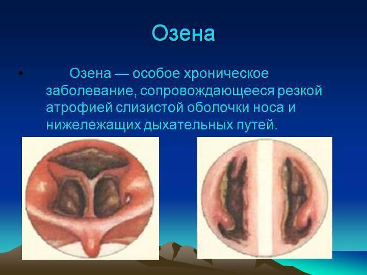 атрофия слизистой носа лечение