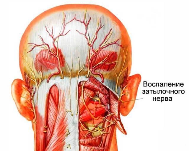 невралгия плечевого сплетения