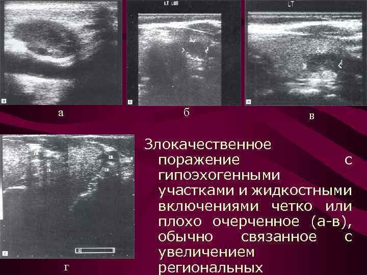 изоэхогенный узел щитовидной железы