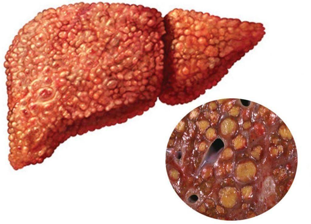 Как быстро развивается цирроз печени: профилактика и прогноз