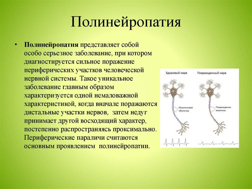что такое полинейропатия нижних конечностей