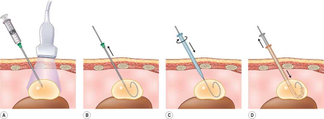 Пункция (биопсия) молочной железы под контролем узи: показания, виды, восстановление
