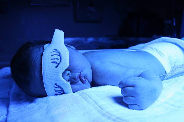Желтушка у новорожденных: причины, последствия, лечение | метки: должный, должный