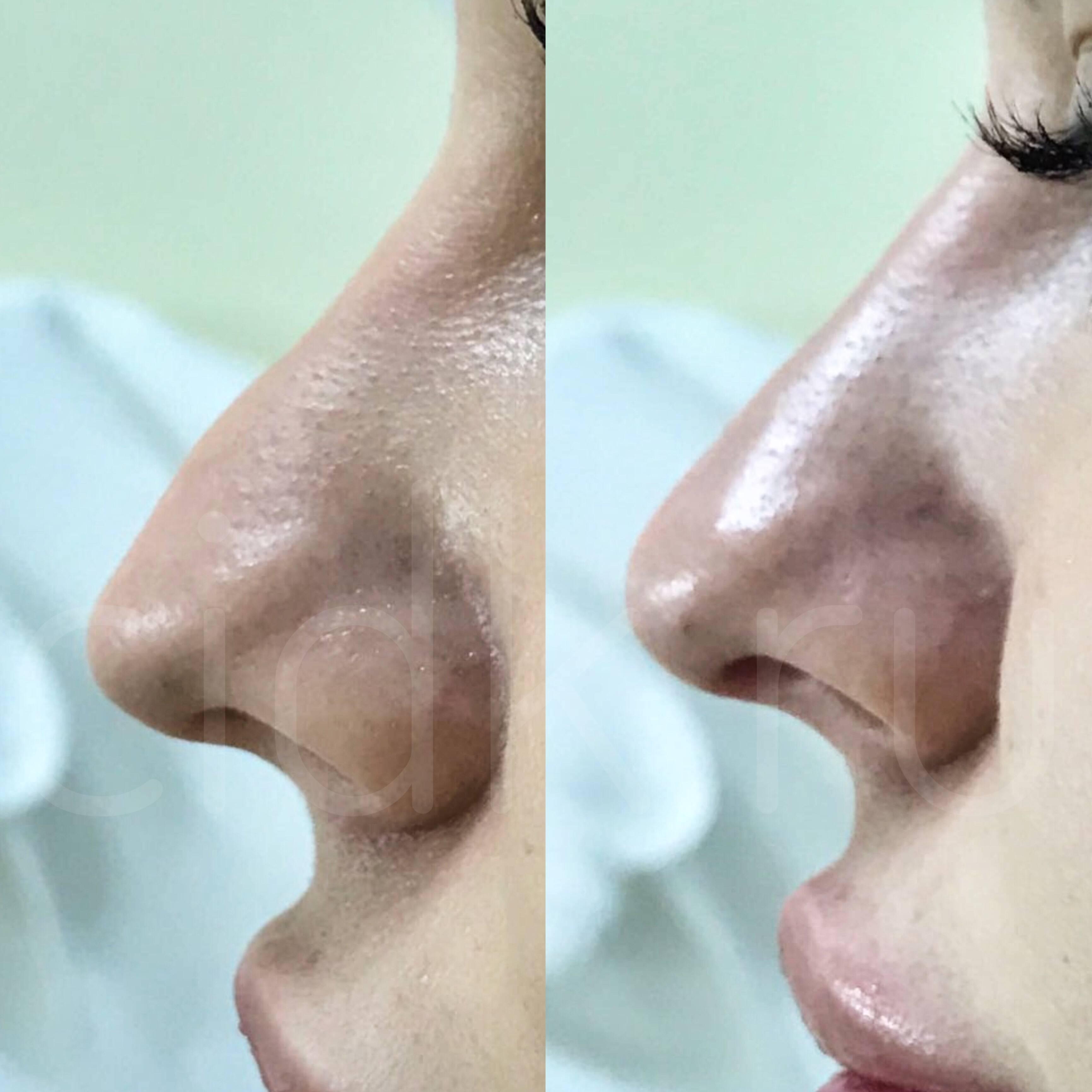 изменить кончик носа