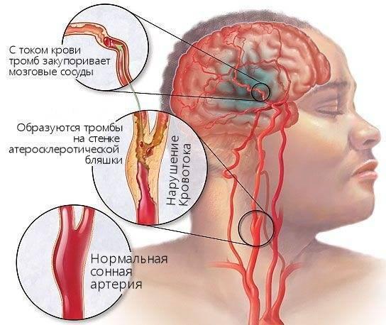 Атеросклероз брахиоцефальных артерий (бца)