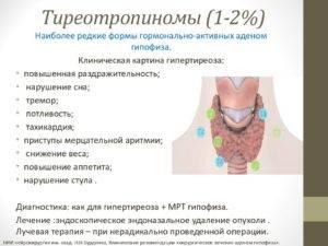 Что такое токсическая аденома щитовидной железы?