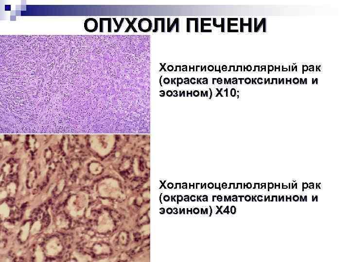 Гепатоцеллюлярная карцинома печени симптомы, лечение, прогноз, диагностика