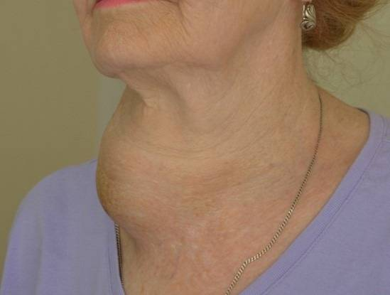 Узловые образования в щитовидной железе: симптомы и методы лечения