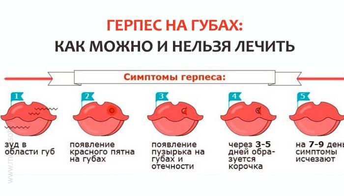 Простуда во время беременности, орви, лечение простуды, народные средства против простуды