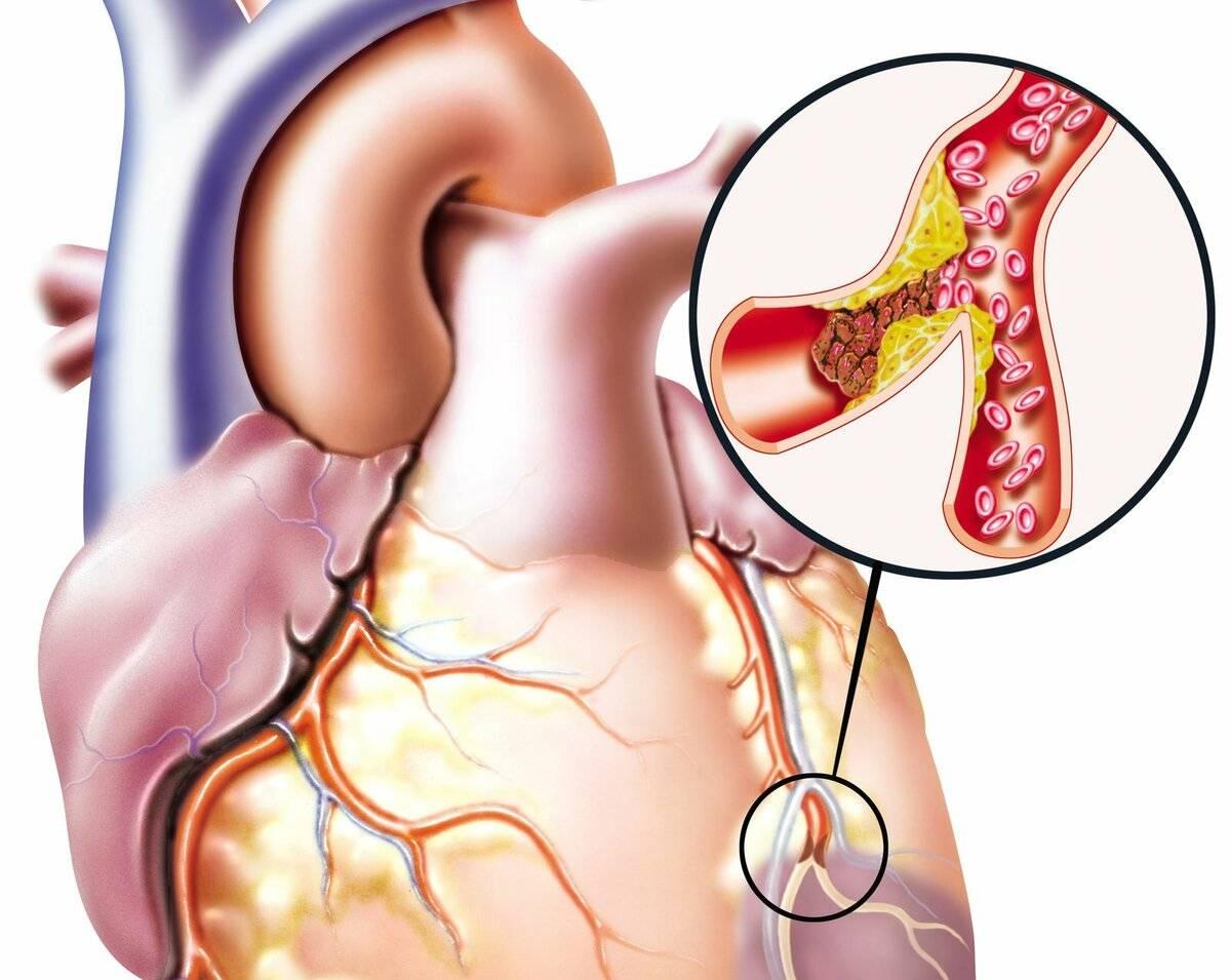 холестерин стенках артерий