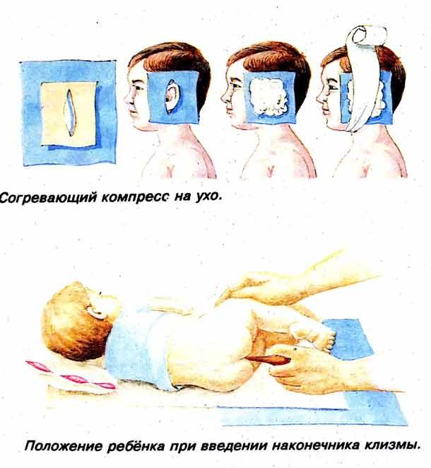 Как правильно сделать компресс на ухо ребенку водочный камфорный спиртовой