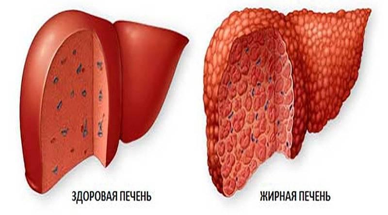 Диета при гепатозе печени: что это такое и как лечить гепатоз диетой