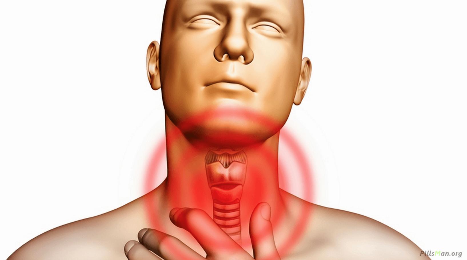 Как снять отек горла при ангине | лечение отека миндалин при ангине