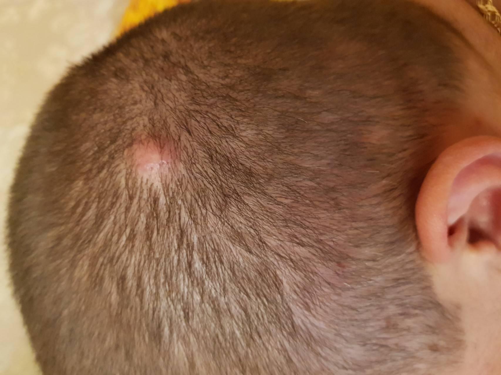 Чем лечить герпес на голове в волосах