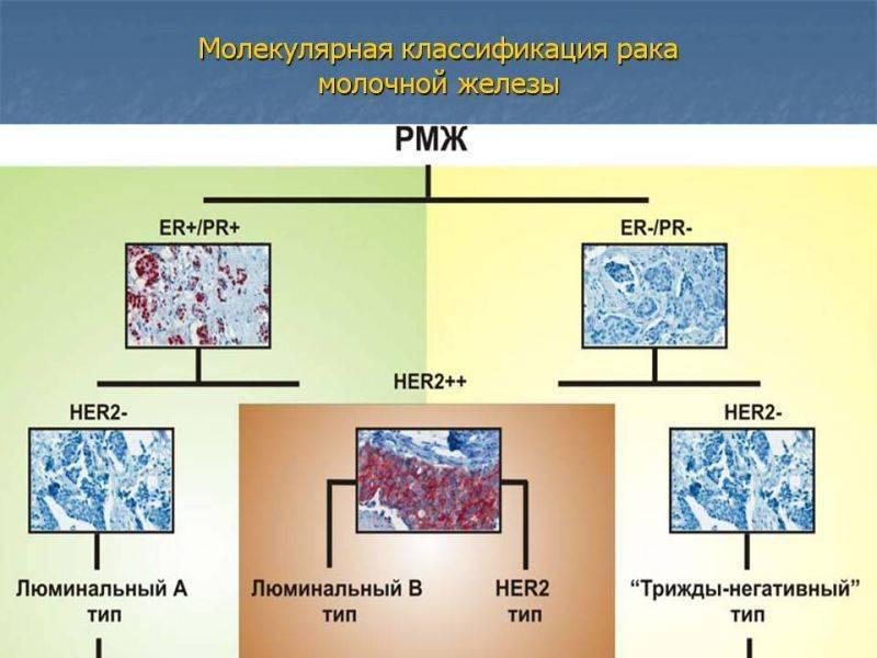 Люминальный тип а рака молочной железы: прогноз