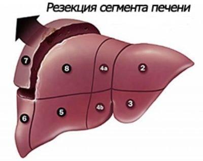Гемангиома печени и питание: диета при гемангиоме