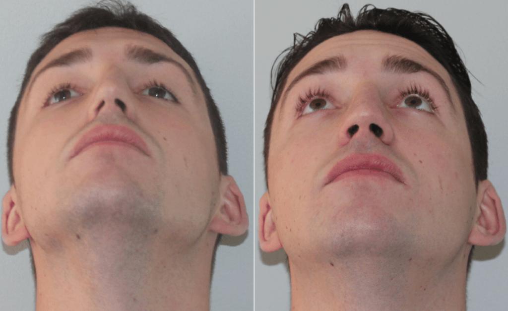 Искривление носовой перегородки: симптомы, лечение — симптомы