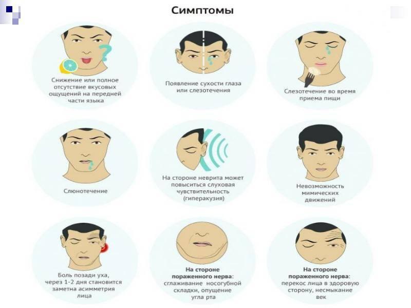 Упражнения при парезе лицевого нерва