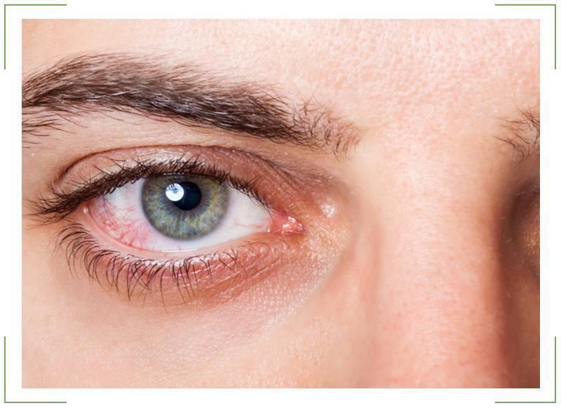 краснеют глаза от линз