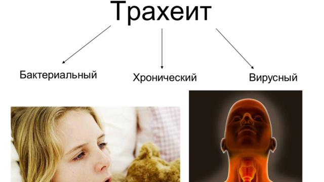 Лечение острого трахеита с сухим кашлем у взрослых