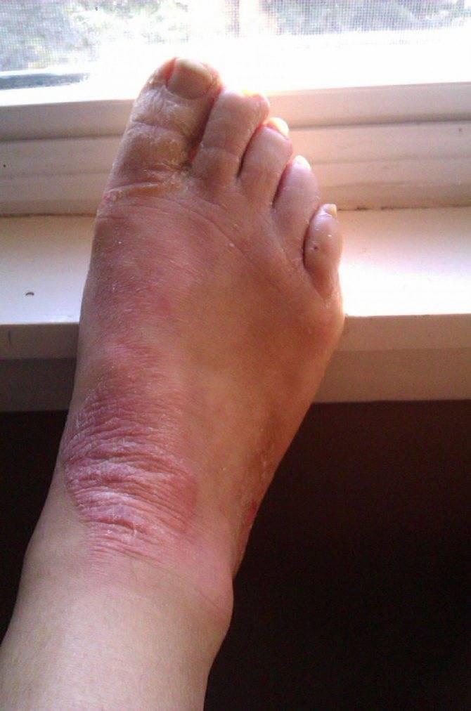 Современные методы лечения псориаза на ногах