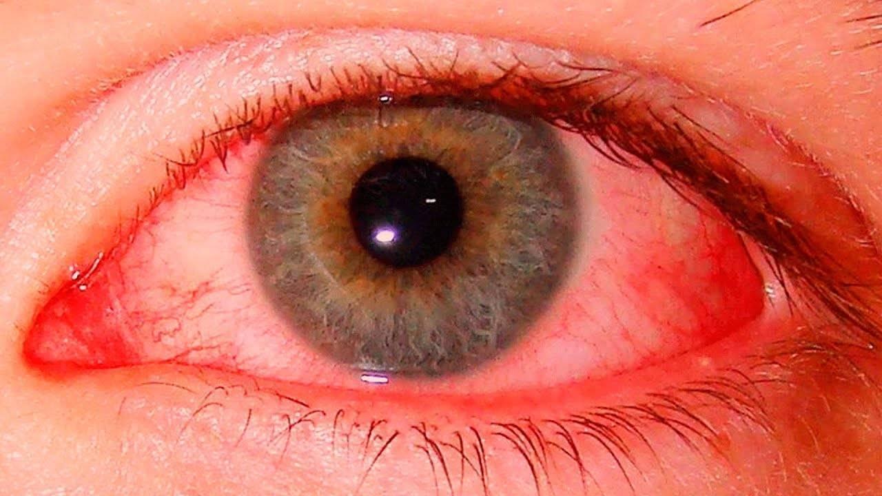 Красные глаза после линз: почему краснеют и болят оба или один, что делать, капли от покраснения при ношении изделий оптики