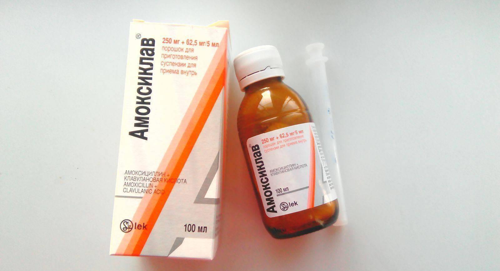 Чем лечить ангину