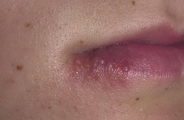 Почему часто появляется герпес на губах и что делать если постоянно выскакивает простуда