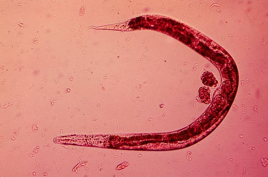 Альвеококкоз: что это, причины, диагностика и лечение | все о паразитах