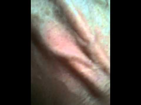 черви под кожей