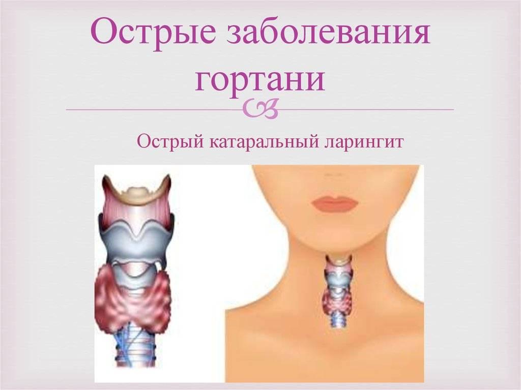 Трахеит. причины, симптомы, диагностика и лечение болезни. профилактика и эффективное лечение трахеита у детей и взрослых.