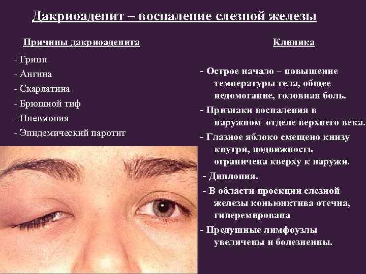 Дакриоаденит симптомы признаки профилактика лечение. все глазные болезни - vseozrenii.