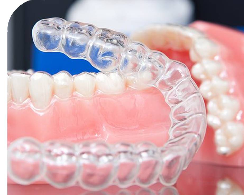 элайнер ортодонтический