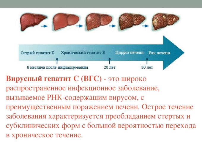 Хронический гепатит б: можно ли вылечить?