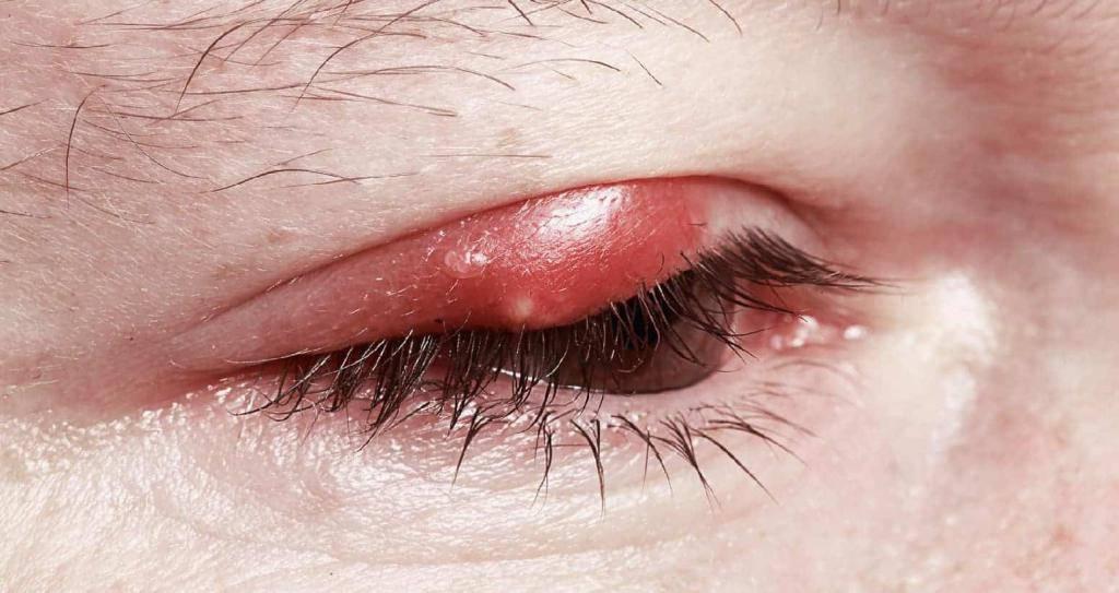 Демодекозный или клещевой блефарит: причины, симптоматика и терапия